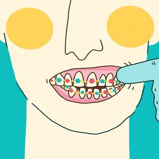 Bahayanya Pakai Behel Gigi untuk Sekadar Gaya-gayaan